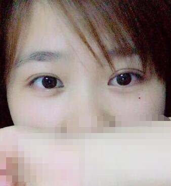 广州华美王洪勇医生做的全切双眼皮手术+去皮去脂+上睑提肌案例