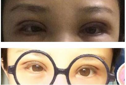 山东济南眼科医院做全切双眼皮+去脂+提肌案例