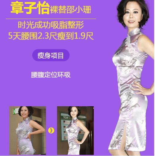 杭州时光擅长的吸脂减肥 吕敏医生技术口碑很好