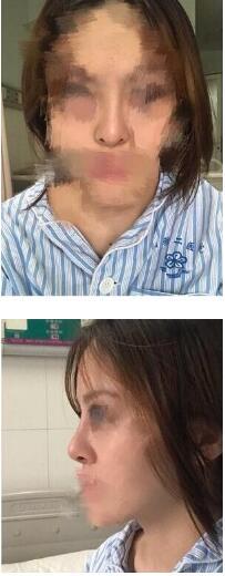中南大学湘雅二医院王先成医生做的肋软骨鼻综合修复