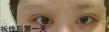 成都米兰柏羽卢尚兵医生做的全切双眼皮+开眼角