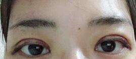 济南千佛山医院王彦医生做的双眼皮手术