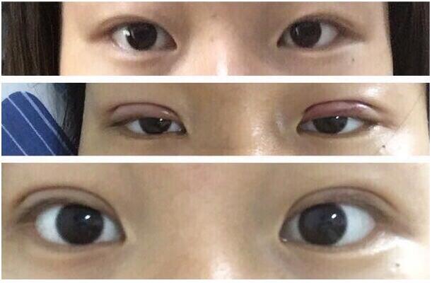 潍坊医学院医院做埋线双眼皮真实案例 分享一下手术流程