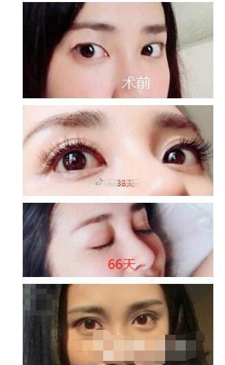 深圳双眼皮真实案例分享 第116天真实效果
