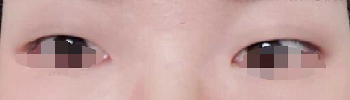 宁波伽禾费安军医生做的全切双眼皮+开眼角+去皮去脂+提肌