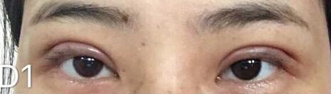 温州医科附二院徐海艇医生做的全切双眼皮手术+去皮去脂 花了6300