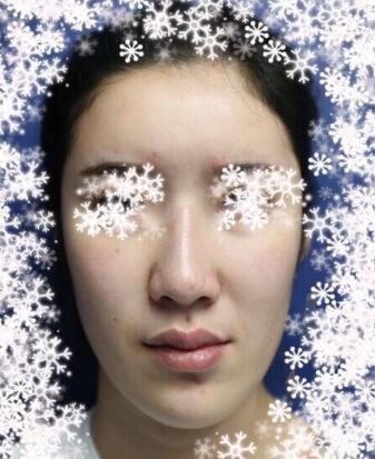 分享北京八大处做的自体耳软骨隆鼻真实案例 效果很自然