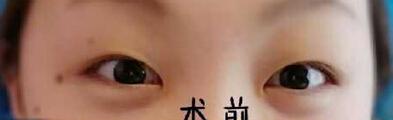 大连艺星李娇蕾医生做的全切双眼皮+去皮去脂+开内眼角 看看好不
