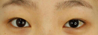 长沙美德思曾毅求医生做的双眼皮成型+去皮去脂 来看下我的图片吧