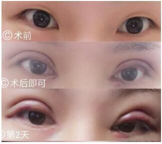 济南美莱整形医院做全切双眼皮+内眼角案例 韩旭医生技术口碑好