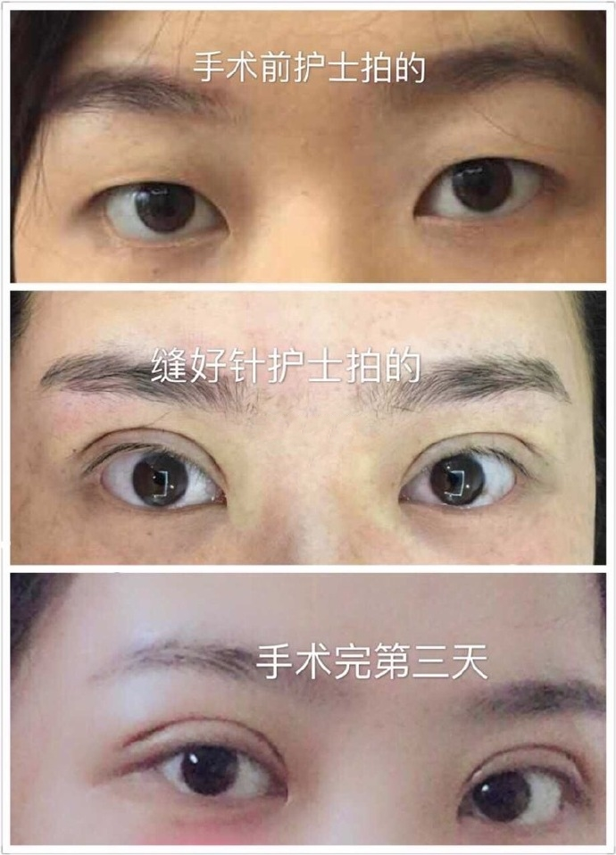 浙江医学院附一医院吴慧玲做的全切双眼皮+去皮去脂 还可以哦