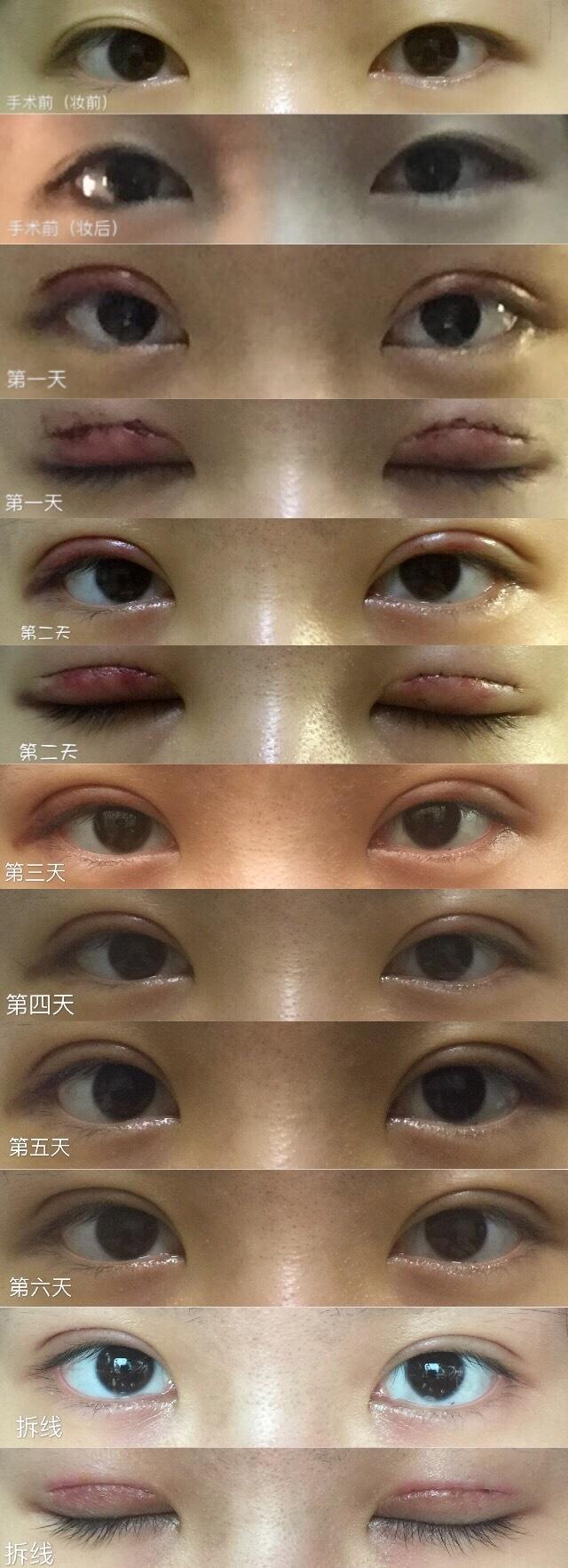 长沙爱思特郑颖平医生做的美式亮瞳双眼皮 手术价格是5840元