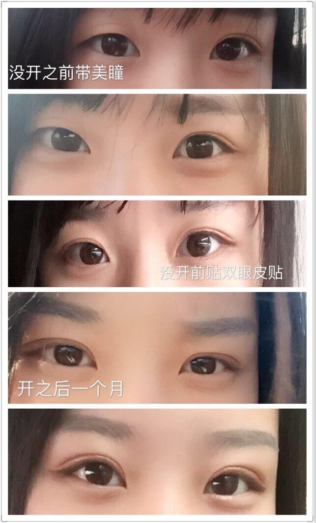 南京康美张让虎医生做的双眼皮手术 前后变化真的挺大的