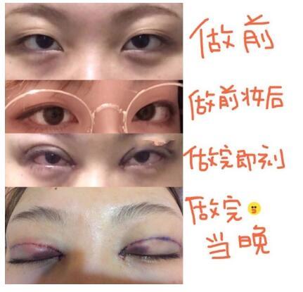 成都西婵做微创多点双眼皮+内眼角案例 王勇丁医生技术口碑好
