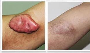 疤痕增生可以通过疤痕手术治疗来解决