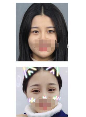 上海455医院做全切双眼皮真实案例 医生技术杠杠的
