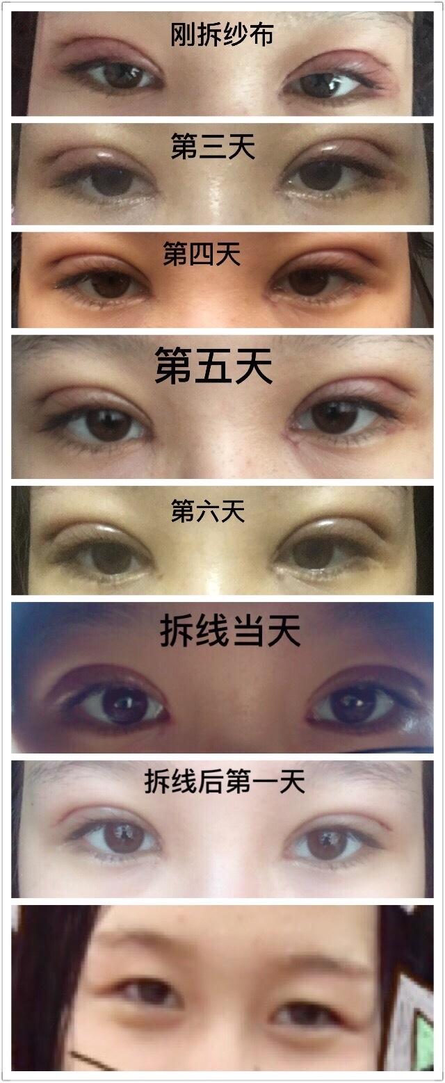 洛阳孔繁荣周先华医生做的全切双眼皮+内眼角 看看我的变化吧