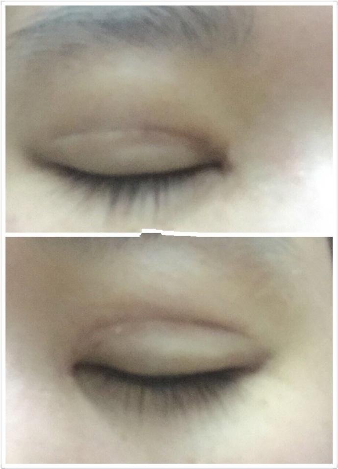 广州美贝尔医院全切双眼皮+内眼角案例 一共花了六千左右