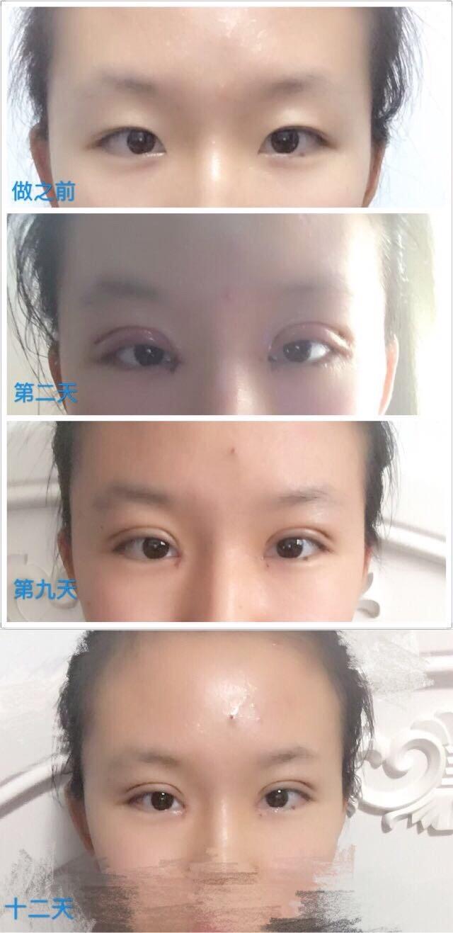 安徽省立医院水庆付医生做的全切双眼皮+内眼角 有时间来分享了