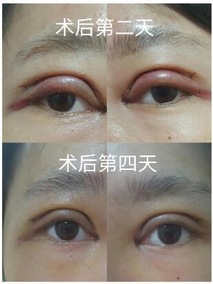 广州广美黄医生做的全切双眼皮+内眼角 给大家参考下