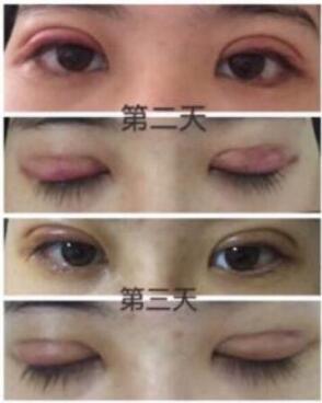 北京空军总院做全切双眼皮+外眼角案例 医生技术杠杠的