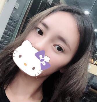 广州做自体脂肪丰额头真实案例 带来少女感