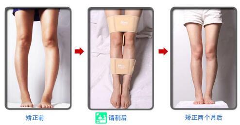 """""""O""""型腿的矫正方法以及次数具体如下"""