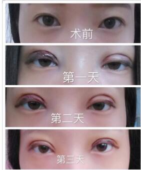 武汉天佑医院韩式三点双眼皮案例 田医生技术口碑好