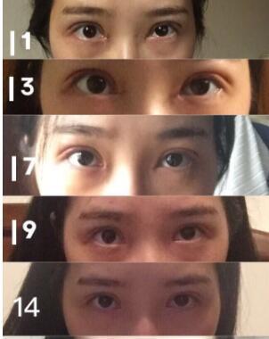杭州整形医院做全切双眼皮+内眼角+提肌案例 杨医生口碑好