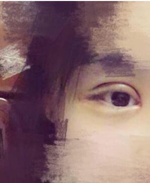 上海华东医院做全切双眼皮+内眼角真实案例 刘天一技术口碑好