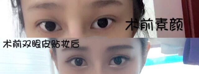 荆州名韩杨勇医生做的全切双眼皮+提肌 花了我五千八