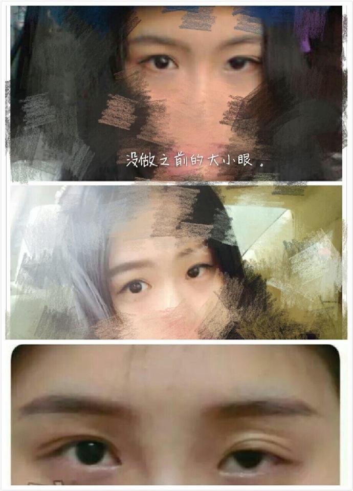 平顶山安一峰双眼皮修复+左眼提肌+外眼角案例分享 真的美美的哦