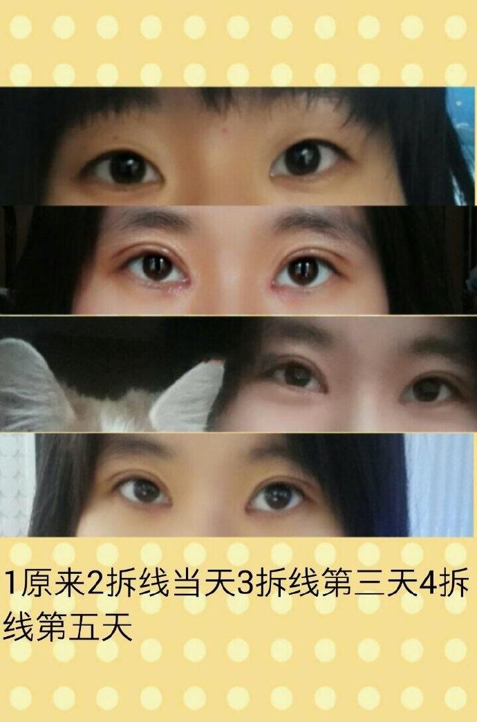 北京八大处王永前医生做的全切双眼皮+内眼角 竟然不到一万二哦