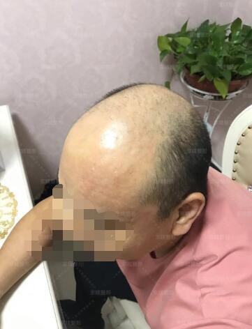 邯郸京美植发手术真人案例分享前后对比图