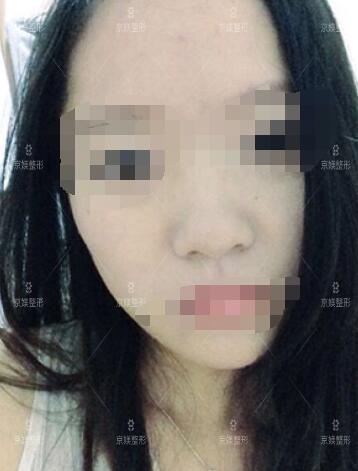 邯郸京美肉毒素注射真人案例分享前后对比图