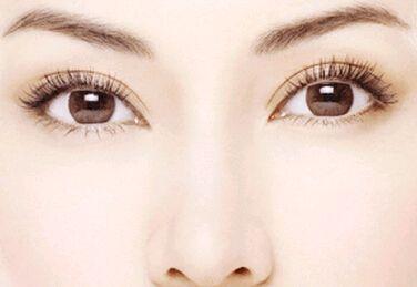 双眼皮的价格如何有什么优势