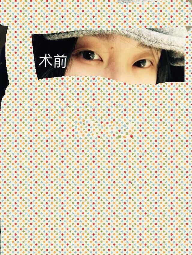 北京八大处陈文医生做的埋线双眼皮 价格是5000 看看术后怎么样