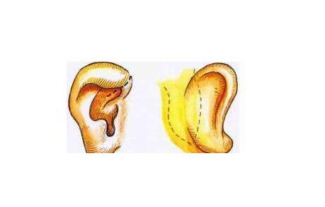杯状耳矫正手术价格由哪些因素构成的