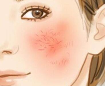 刚做激光去红血丝后脸肯定会红吗