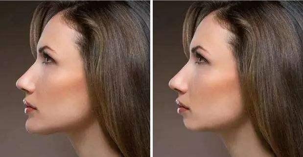 下颌角整形的优势