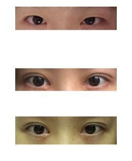 成都大华微创小切口双眼皮+内眼角案例