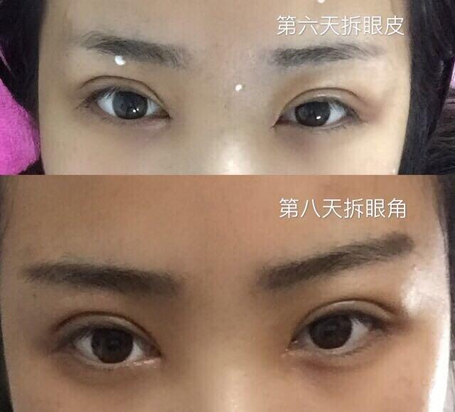 天津美莱李继森医生做的全切双眼皮+内眼角案例分享