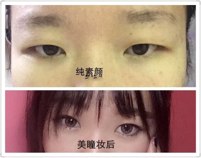 贵阳华美韩医生做的全切双眼皮+内眼角案例