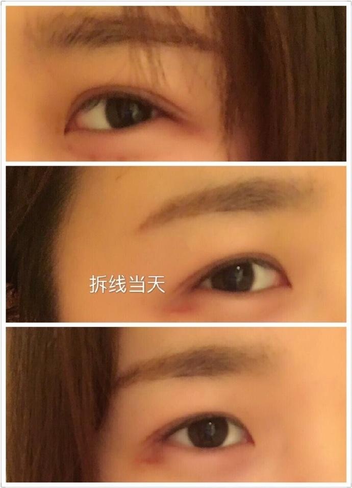 上海九院陆雯娟医生做的全切双眼皮