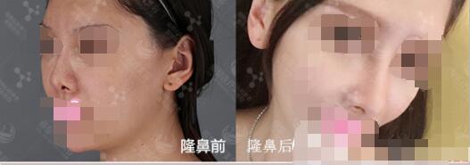 【整形口碑】北京丽都整形吴玉家院长的鼻综合