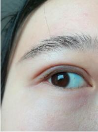 找武汉科技大学附属天佑医院孔伟医生做的全切双眼皮