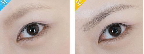 眉毛種植的詳細步驟有這幾步