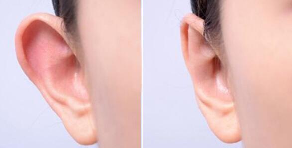 招風耳矯正手術符合人群以及不適宜做的有這些