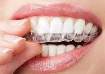 矯正牙齒在12-16歲之后進行效果會比較好