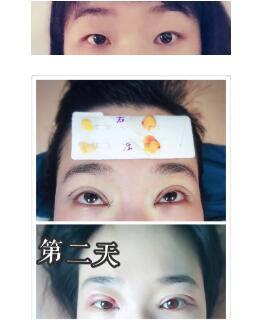 上海蔡仁祥医院做六点式双眼皮+内眼角+去脂案例 大眼睛很是自然